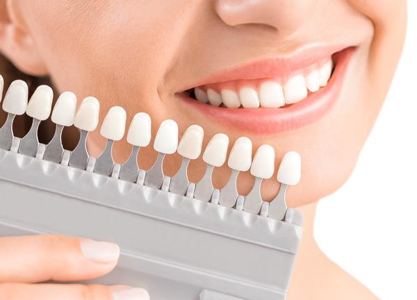 目立つ銀歯をきれいな白い歯に~セラミック治療~